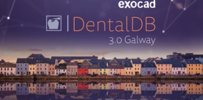3.0 Galway: cosa c'è di nuovo?<br>Webinar alla sera