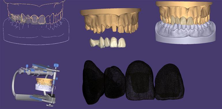 AFFRONTIAMO IL QUOTIDIANO<br>percorso formativo base:<br> su denti naturali e su impianti